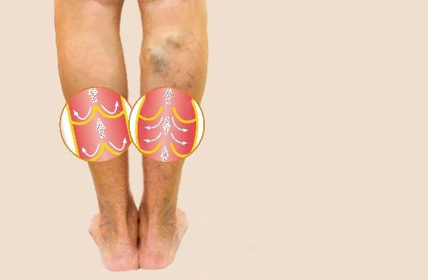 how to avoid varicose veins naturally
