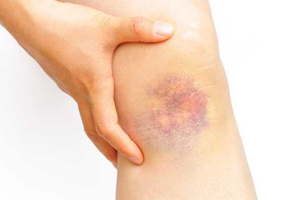 Age bruises old Senile purpura: