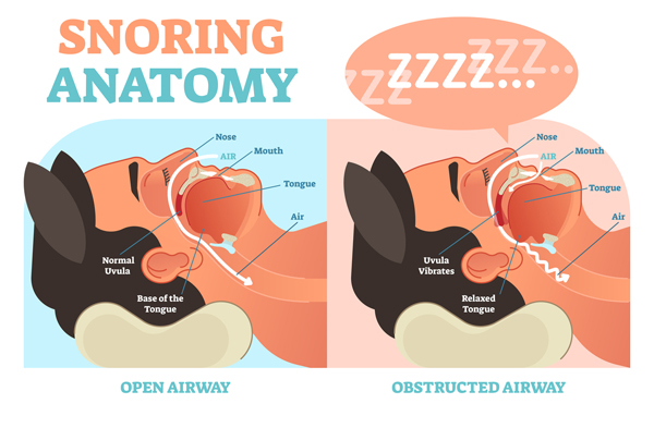 does diet cause snoring