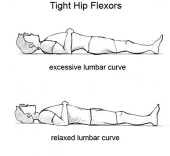 Are tight hip flexors ruining your posture and causing lower back pain?
