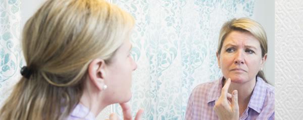 6 Surprising Skin Problems During Menopause A Vogel Talks Menopause