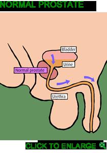 vogel prostasan for symptoms of an enlarged prostate 30