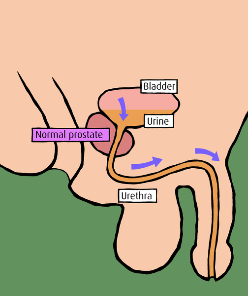 prostatitis symptome beschwerden.jpg